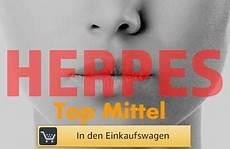 Was Tun Gegen Herpes - was tun gegen herpes den lippenherpes loswerden