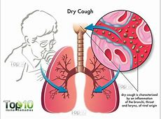 hacking cough