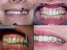 dentiste nogent sur marne implants cas clinique drs