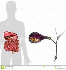 gallbladder stones diagram stones in the gallbladder stock vector illustration of digestive 82685374