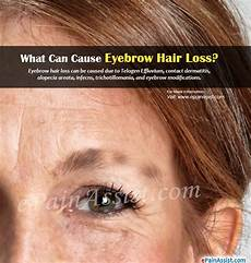 eyebrow hair loss what to do about your thinning eyebrows what can cause eyebrow hair loss