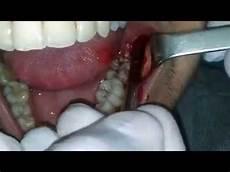 calmer douleur dent de sagesse extraction of lower wisdom tooth extraction dent de sagesse inferieure incluse