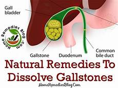 10 best home remedies for gallstones treatment with diet plan home remedies blog