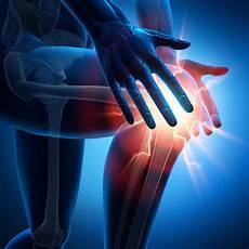 Schmerzen Unter Der Kniescheibe - kniescheibenbruch patellafraktur behandlung reha