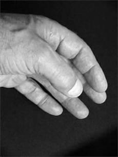 br 252 chige fingern 228 gel was ist die ursache und welche