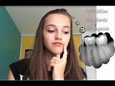calmer douleur dent de sagesse op 233 ration des dents de sagesse mon exp 233 rience