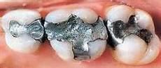 piombatura denti amalgama dentale