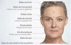 les rides du visage solutions pour rajeunir sans chirurgie