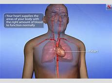 heart catheterization procedure