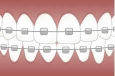 Orthodontie Orthodontiste Reims Reims 51100 Dentiste