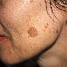 Pigmentflecken Im Gesicht - age spot sun damage treatments canterbury skin and