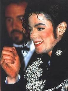 Michael Jackson Vitiligo - vitiligo michael jackson skin disease paminaki lovelly
