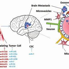 Brain Cancer Diagram by Interaction Between Cancer Cell And Brain Microenvironment