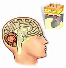Hirntumor Symptome Auge - anatomie des gehirns und der hirnh 228 ute