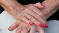 was kann gegen altersflecken der haut machen st