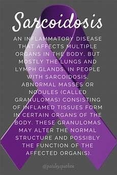 sarcoidosis is an inflammatory disease that affects