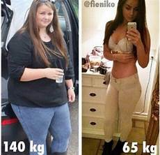 140 Kg Gt 65 Kg Before After Weight Loss Motivation
