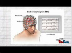electroencephalography conditions it may diagnose