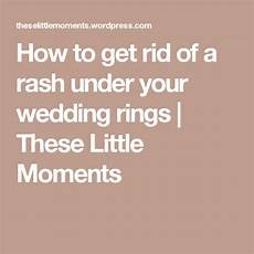 how to get rid of a rash your wedding rings how to get rid wedding rings how to get