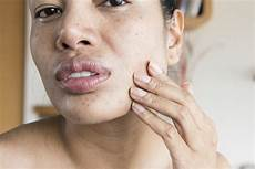 Skin Around The And Chin Causes Treatments And