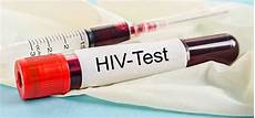 test per l hiv aids vicina con farmaci anti hiv lo studio