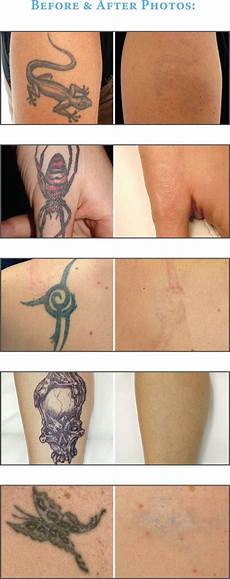 clearsteps laser tattoo removal rejuvenate medical spa