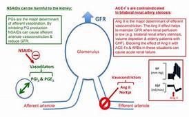 Renal Artery Stenosis And Ace Inhibitor  Google Search