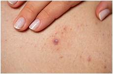 what does bump on pubic hair look like folliculitis vs herpes symptoms causes pictures differences health guide net