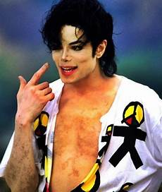 Michael Jackson Vitiligo - proof that michael jackson had vitiligo that don t care