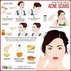 how to get rid of acne scars home remedies