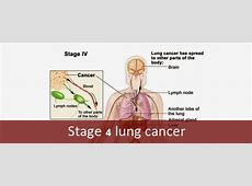 walking pneumonia and lung cancer