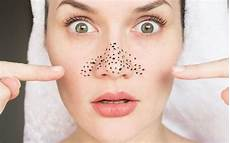 pilz auf der zunge hausmittel what are clogged pores and how to unclog them naturally