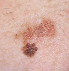 Hautkrebs Bilder Anfangsstadium - pictures of skin cancer early stages of skin cancer
