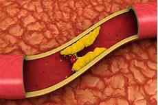 alimenti con colesterolo cattivo colesterolo cattivo ldl come prevenirlo e abbassarlo