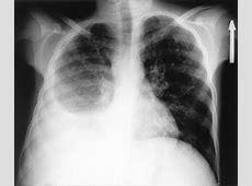 viral pneumonia diagnosis
