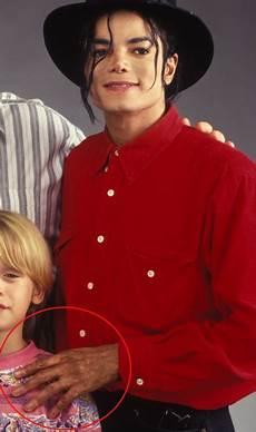 Michael Jackson Vitiligo - michael jackson the child