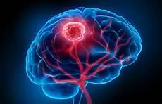 Hirntumor Symptome Auge - gehirntumor 187 symptome arten wahrscheinlichkeit