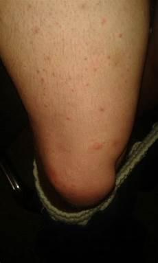 Pickel An Den Beinen - kleine eitrige pickel oberschenkel arm und bauch