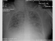 when to see a doctor for pneumonia