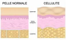 cellulite e alimentazione cos e la cellulite e perche firsystem aiuta ad eliminarla