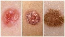 cancer peau photo types of skin cancer symptoms of skin cancer treatment