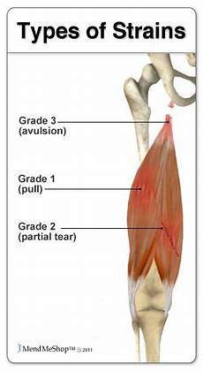 the most common hamstring injuries are grade 1 or 2