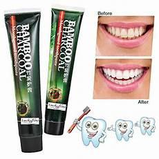 pate pour blanchir les dents votre comparatif pour 2019