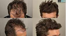 Omg Ma Future Greffe De Cheveux G 201 Nial Sur Le Forum