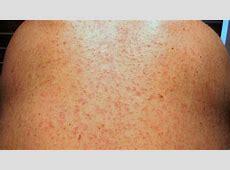 rash after flu
