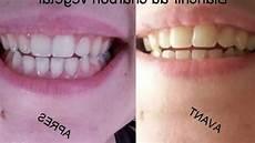 pate pour les dents composition kit blanchiment dentaire