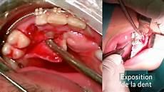calmer douleur dent de sagesse degagements chirurgicaux de dents incluses et collage extemporane de bracketts de traction