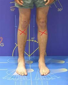 Schmerzen Unter Der Kniescheibe - schienbein schmerzen nach fu 223 verletzung knie