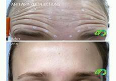 anti wrinkle injections newcastle 4d skin cancer laser clinic