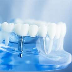 protesi dentali mobili protesi dentali fisse e mobili a confronto